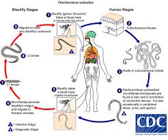 What to do to eliminate onchocerciasis
